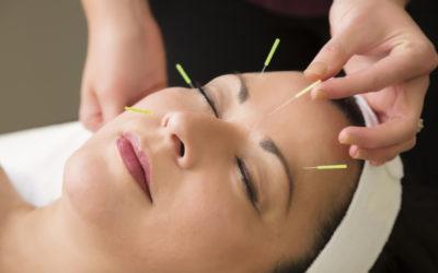 Akupunktur; Vücudun Kendi Kendini Tedavi Etmesidir